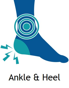 Ankle & Heel Pain Treatment in Delhi DPMC