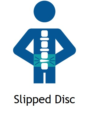 Slipped Disc Treatment in Delhi DPMC