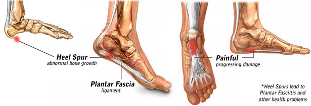 f1ba0ba641 Ankle & Heel Pain Treatment Specialists – DPMC