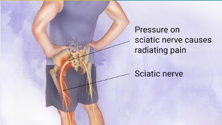 Sciatic Pain