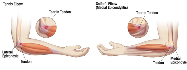 Tennis-elbow-and-golfers-elbow