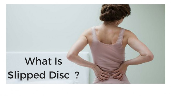 What Is Slipped Disc